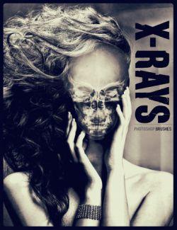 Ron's X-Rays